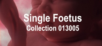 Single Baby Collection 013005
