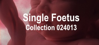 Single Baby Collection 024013